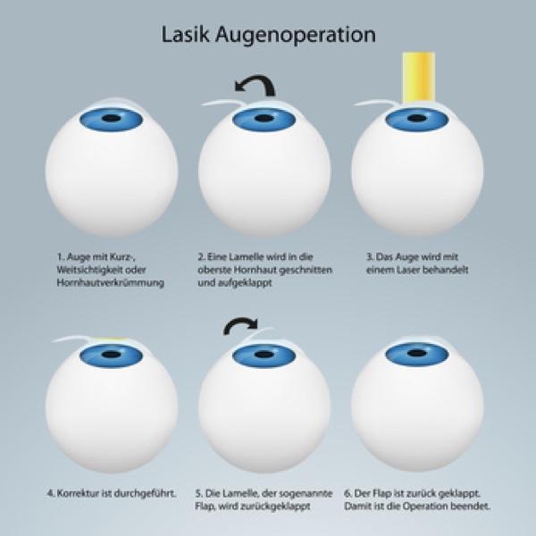 Laserbehandlung an den Augen.